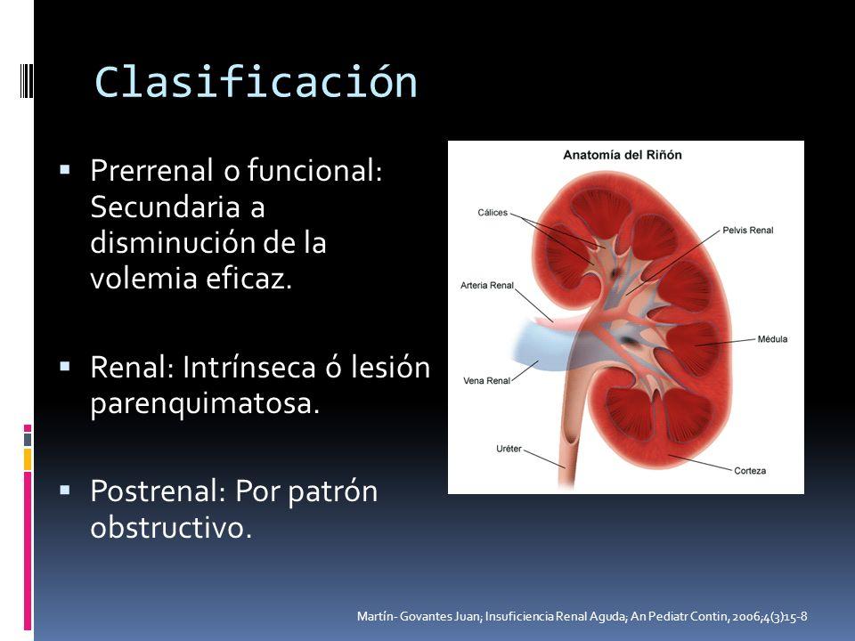 Clasificación Prerrenal o funcional: Secundaria a disminución de la volemia eficaz. Renal: Intrínseca ó lesión parenquimatosa. Postrenal: Por patrón o