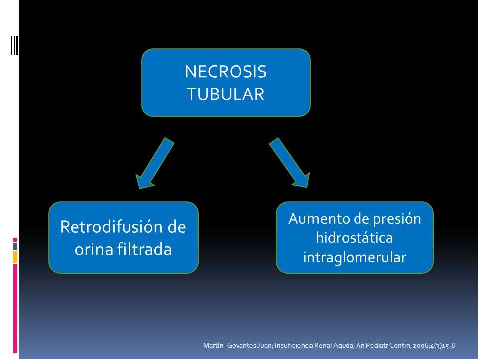 Martín- Govantes Juan; Insuficiencia Renal Aguda; An Pediatr Contin, 2006;4(3)15-8 NECROSIS TUBULAR Retrodifusión de orina filtrada Aumento de presión