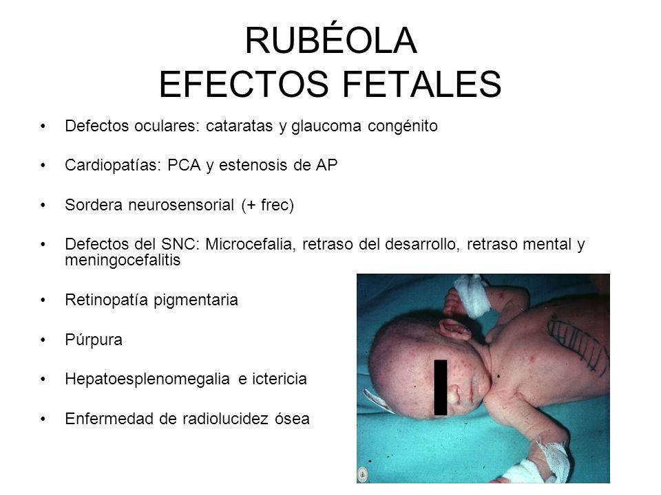 RUBÉOLA EFECTOS FETALES Defectos oculares: cataratas y glaucoma congénito Cardiopatías: PCA y estenosis de AP Sordera neurosensorial (+ frec) Defectos