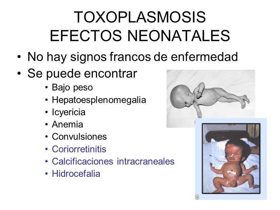 TOXOPLASMOSIS EFECTOS NEONATALES No hay signos francos de enfermedad Se puede encontrar Bajo peso Hepatoesplenomegalia Icyericia Anemia Convulsiones C