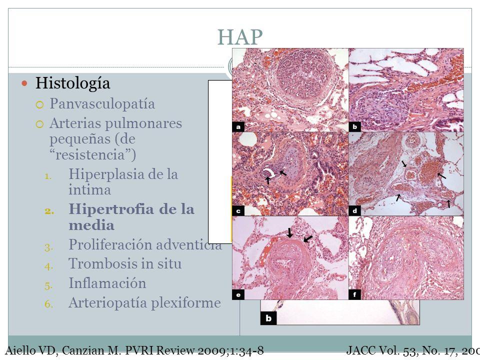 HAP Histología Panvasculopatía Arterias pulmonares pequeñas (de resistencia) 1. Hiperplasia de la intima 2. Hipertrofia de la media 3. Proliferación a