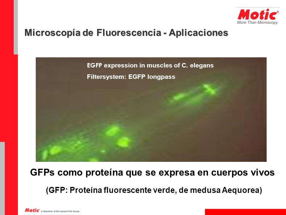 EGFP expression in muscles of C. elegans Filtersystem: EGFP longpass GFPs como proteína que se expresa en cuerpos vivos (GFP: Proteína fluorescente ve