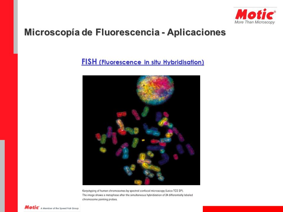 FISH (Fluorescence in situ Hybridisation) Microscopía de Fluorescencia - Aplicaciones
