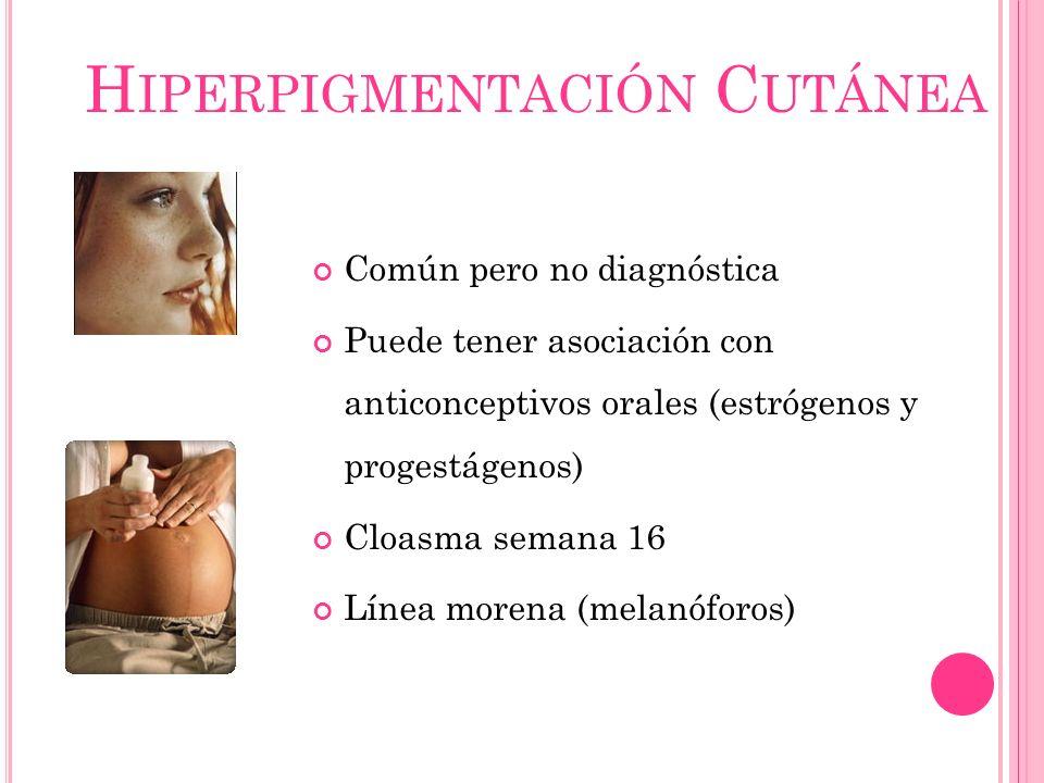 H IPERPIGMENTACIÓN C UTÁNEA Común pero no diagnóstica Puede tener asociación con anticonceptivos orales (estrógenos y progestágenos) Cloasma semana 16 Línea morena (melanóforos)