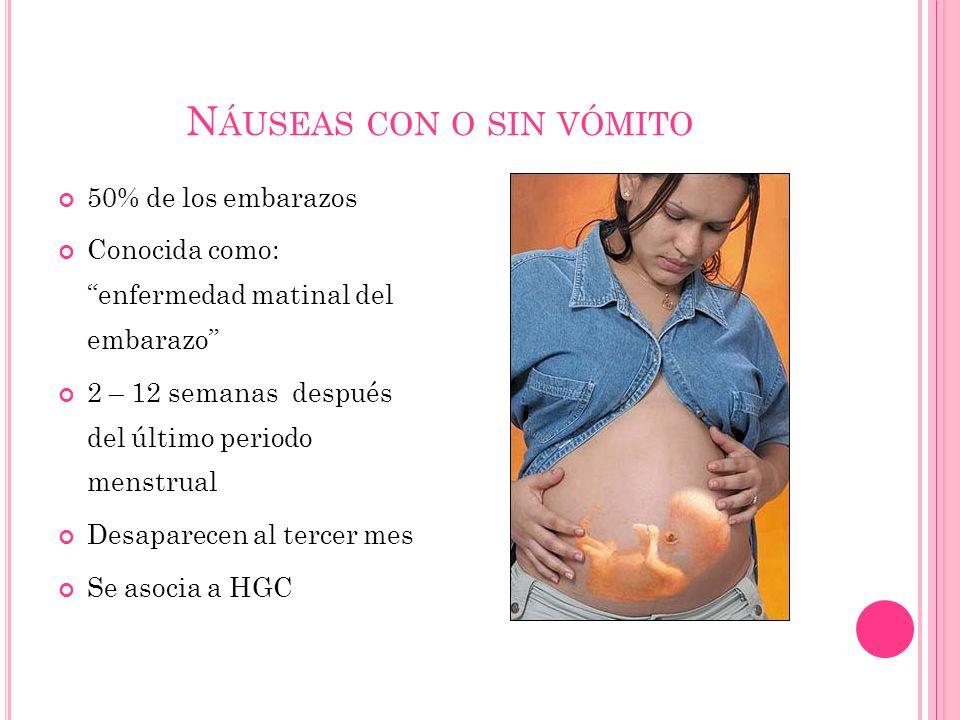 N ÁUSEAS CON O SIN VÓMITO 50% de los embarazos Conocida como: enfermedad matinal del embarazo 2 – 12 semanas después del último periodo menstrual Desaparecen al tercer mes Se asocia a HGC