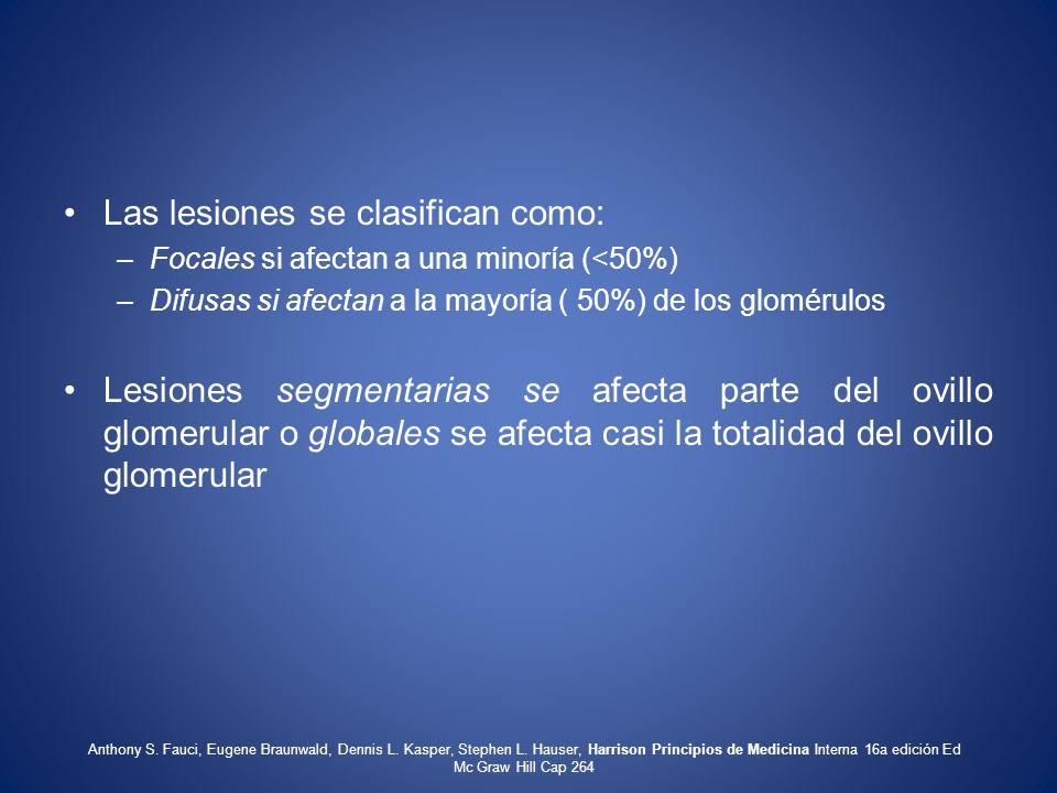 Las lesiones se clasifican como: –Focales si afectan a una minoría (<50%) –Difusas si afectan a la mayoría ( 50%) de los glomérulos Lesiones segmentar