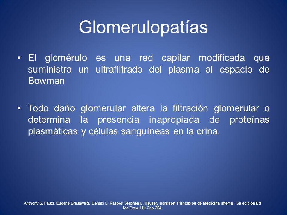 Glomerulopatías El glomérulo es una red capilar modificada que suministra un ultrafiltrado del plasma al espacio de Bowman Todo daño glomerular altera