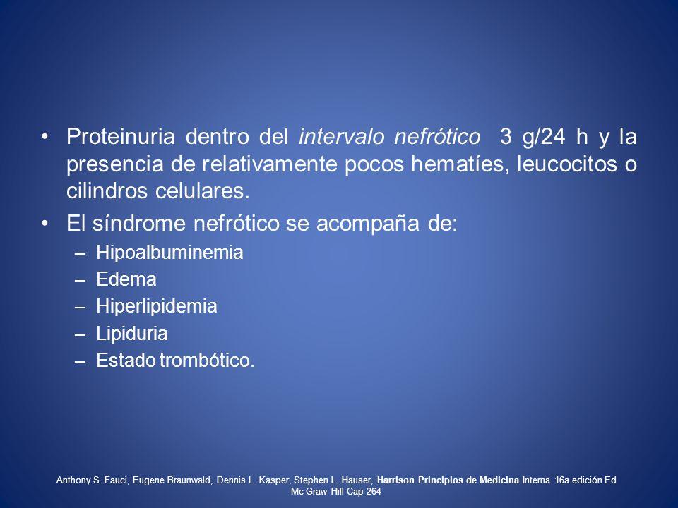 Proteinuria dentro del intervalo nefrótico 3 g/24 h y la presencia de relativamente pocos hematíes, leucocitos o cilindros celulares. El síndrome nefr