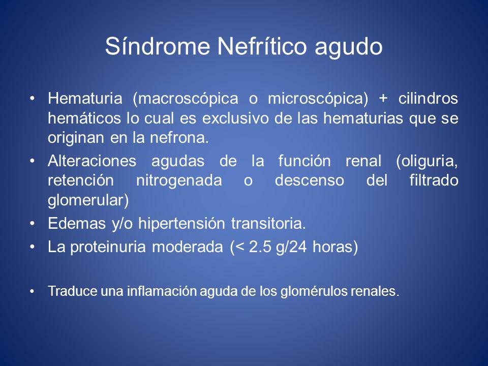Síndrome Nefrítico agudo Hematuria (macroscópica o microscópica) + cilindros hemáticos lo cual es exclusivo de las hematurias que se originan en la ne