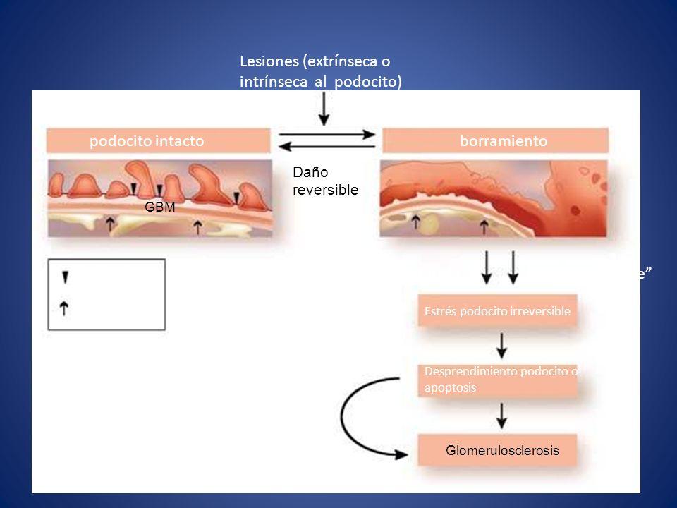 Lesiones (extrínseca o intrínseca al podocito) Daño reversible podocito intacto borramiento GBM Hendidura de filtración de membrana Fenestración Daño