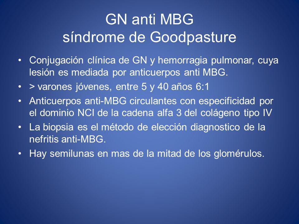 GN anti MBG síndrome de Goodpasture Conjugación clínica de GN y hemorragia pulmonar, cuya lesión es mediada por anticuerpos anti MBG. > varones jóvene