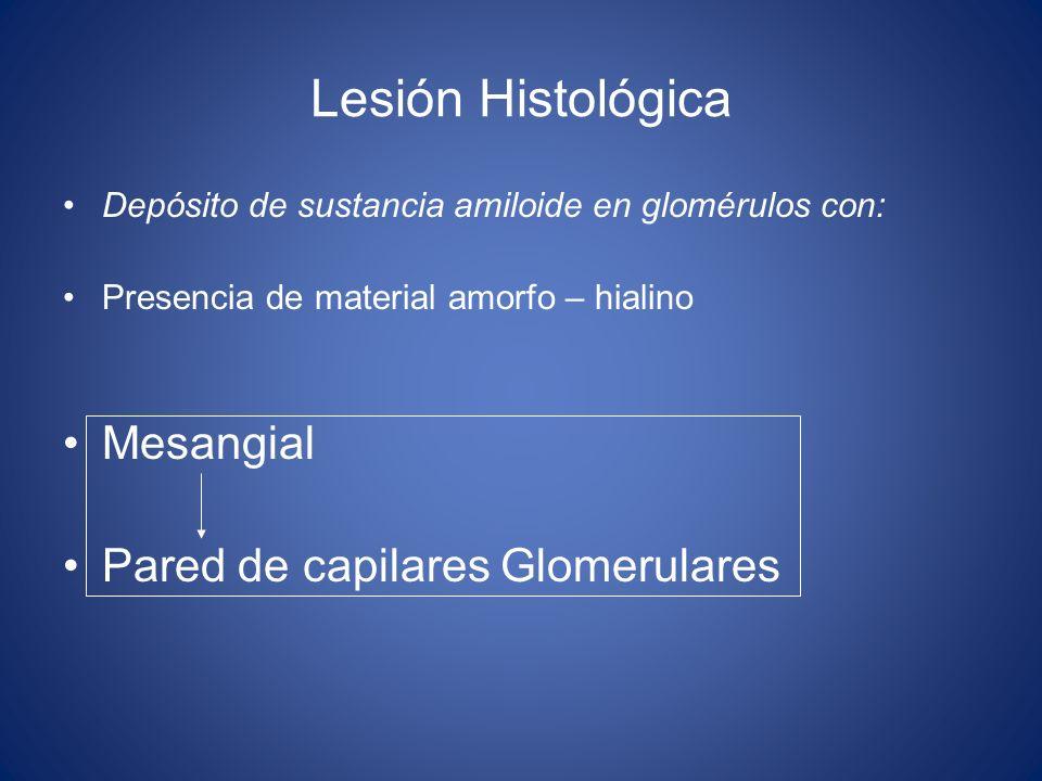 Lesión Histológica Depósito de sustancia amiloide en glomérulos con: Presencia de material amorfo – hialino Mesangial Pared de capilares Glomerulares