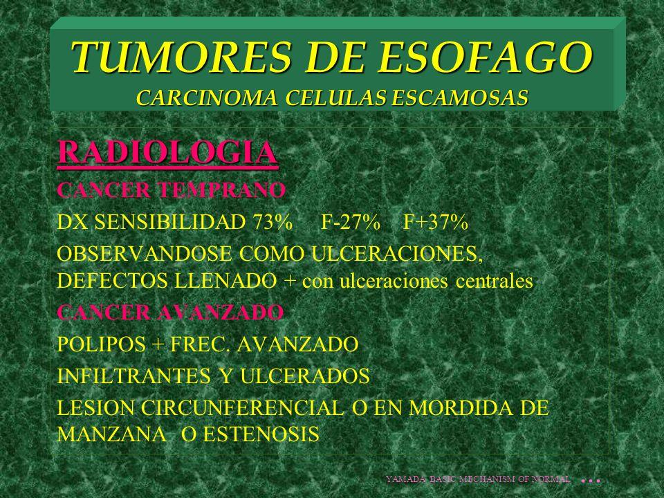 TUMORES DE ESOFAGO CARCINOMA CELULAS ESCAMOSAS RADIOLOGIA CANCER TEMPRANO DX SENSIBILIDAD 73% F-27% F+37% OBSERVANDOSE COMO ULCERACIONES, DEFECTOS LLE