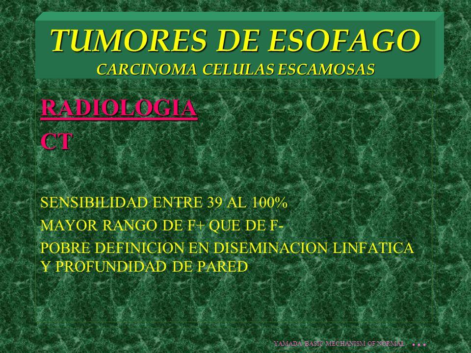 TUMORES DE ESOFAGO CARCINOMA CELULAS ESCAMOSAS RADIOLOGIACT SENSIBILIDAD ENTRE 39 AL 100% MAYOR RANGO DE F+ QUE DE F- POBRE DEFINICION EN DISEMINACION