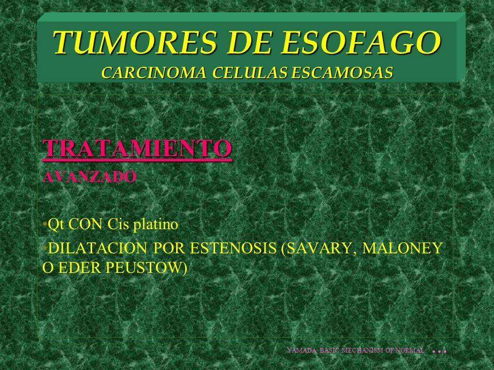 TUMORES DE ESOFAGO CARCINOMA CELULAS ESCAMOSAS TRATAMIENTO AVANZADO Qt CON Cis platino DILATACION POR ESTENOSIS (SAVARY, MALONEY O EDER PEUSTOW) YAMAD