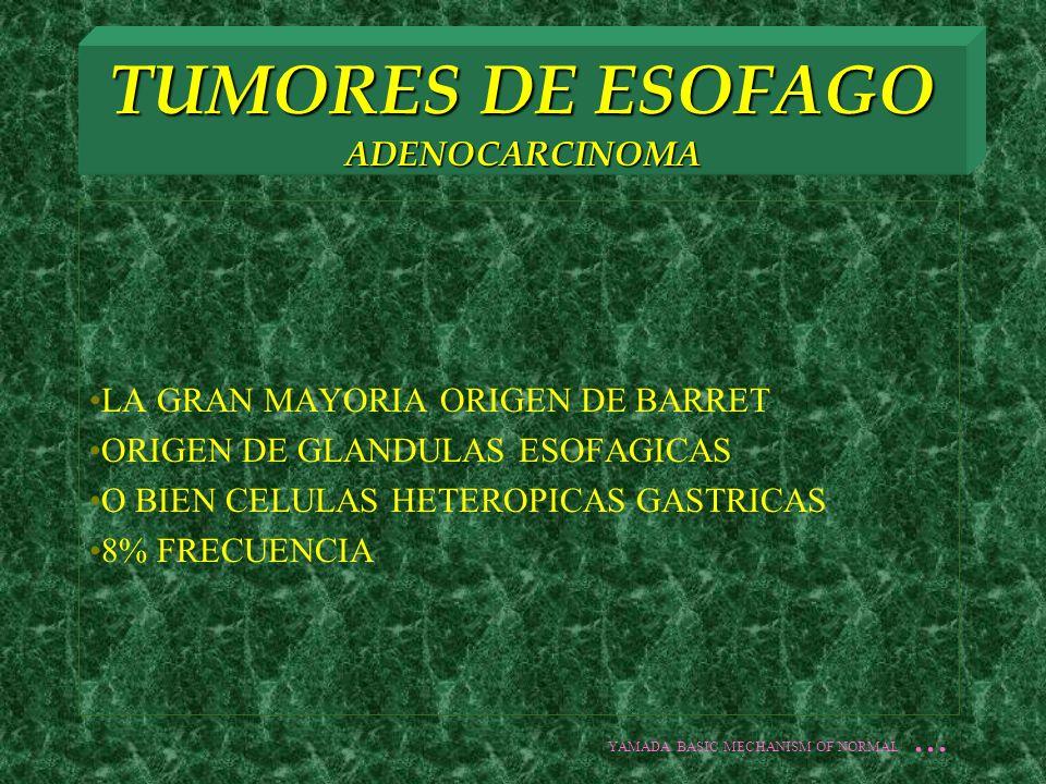 TUMORES DE ESOFAGO ADENOCARCINOMA LA GRAN MAYORIA ORIGEN DE BARRET ORIGEN DE GLANDULAS ESOFAGICAS O BIEN CELULAS HETEROPICAS GASTRICAS 8% FRECUENCIA Y