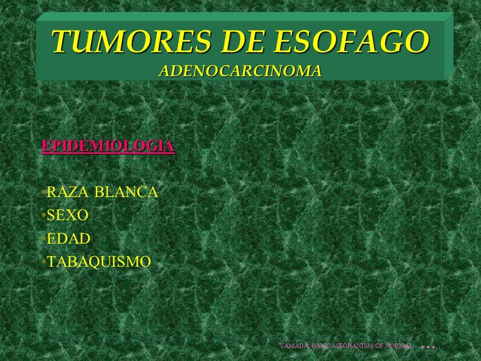 TUMORES DE ESOFAGO ADENOCARCINOMA EPIDEMIOLOGIA RAZA BLANCA SEXO EDAD TABAQUISMO YAMADA BASIC MECHANISM OF NORMAL...