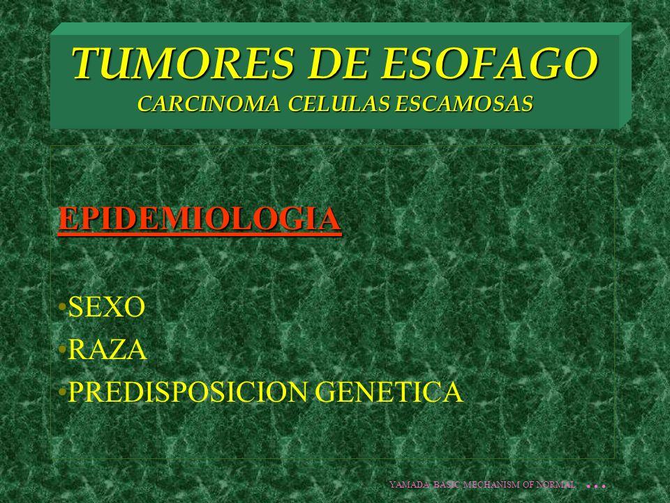 TUMORES DE ESOFAGO CARCINOMA CELULAS ESCAMOSAS ETIOLOGIA TABACO ALCOHOL TYLOSIS ACHALASIA ESTENOSIS ALCALINA SX PLUMMER VINSON CARC.