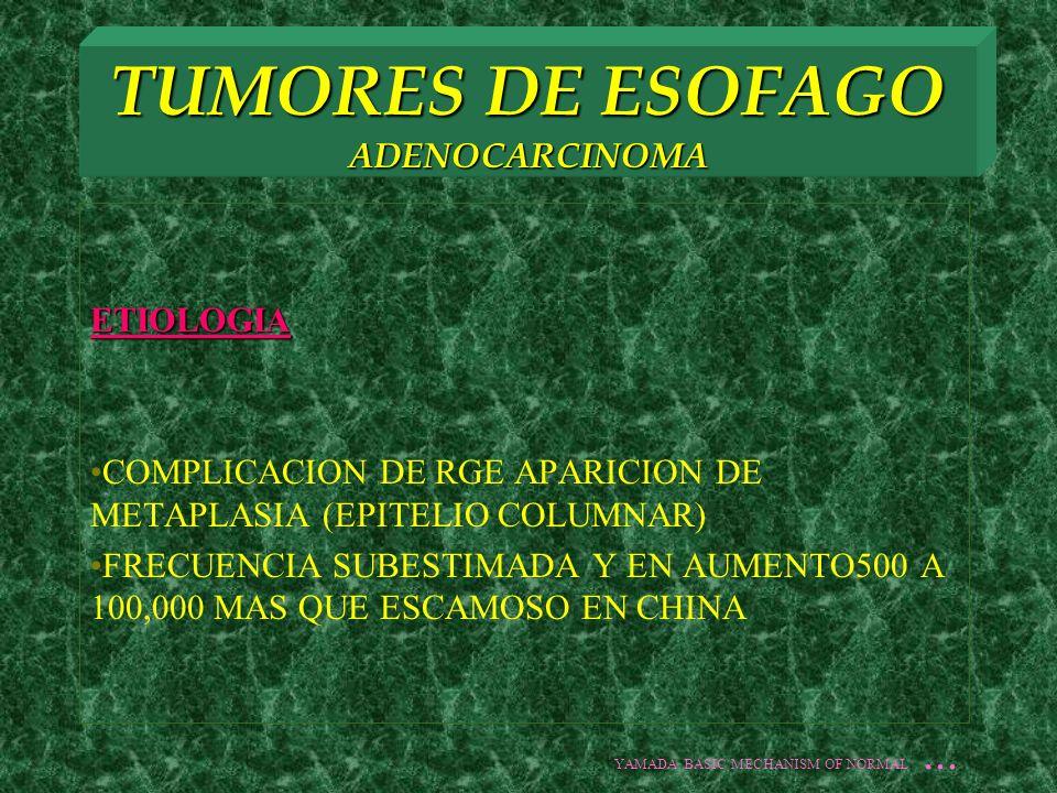 TUMORES DE ESOFAGO ADENOCARCINOMA ETIOLOGIA COMPLICACION DE RGE APARICION DE METAPLASIA (EPITELIO COLUMNAR) FRECUENCIA SUBESTIMADA Y EN AUMENTO500 A 1