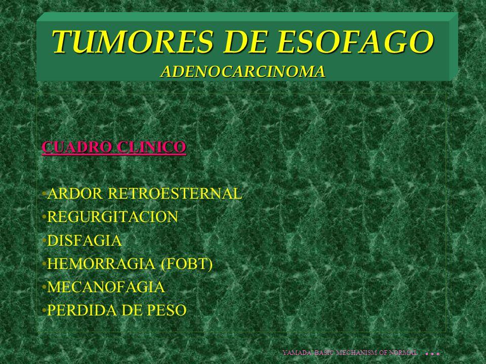 TUMORES DE ESOFAGO ADENOCARCINOMA CUADRO CLINICO ARDOR RETROESTERNAL REGURGITACION DISFAGIA HEMORRAGIA (FOBT) MECANOFAGIA PERDIDA DE PESO YAMADA BASIC