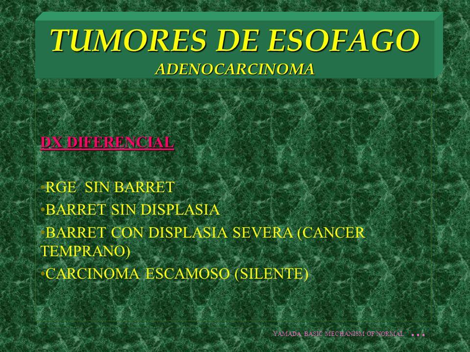 TUMORES DE ESOFAGO ADENOCARCINOMA DX DIFERENCIAL RGE SIN BARRET BARRET SIN DISPLASIA BARRET CON DISPLASIA SEVERA (CANCER TEMPRANO) CARCINOMA ESCAMOSO