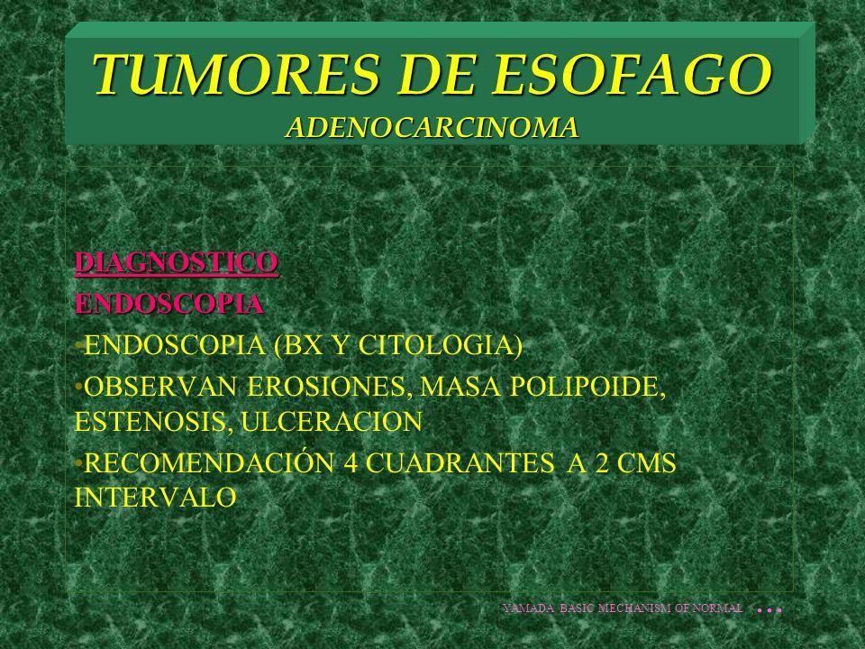DIAGNOSTICOENDOSCOPIA ENDOSCOPIA (BX Y CITOLOGIA) OBSERVAN EROSIONES, MASA POLIPOIDE, ESTENOSIS, ULCERACION RECOMENDACIÓN 4 CUADRANTES A 2 CMS INTERVA