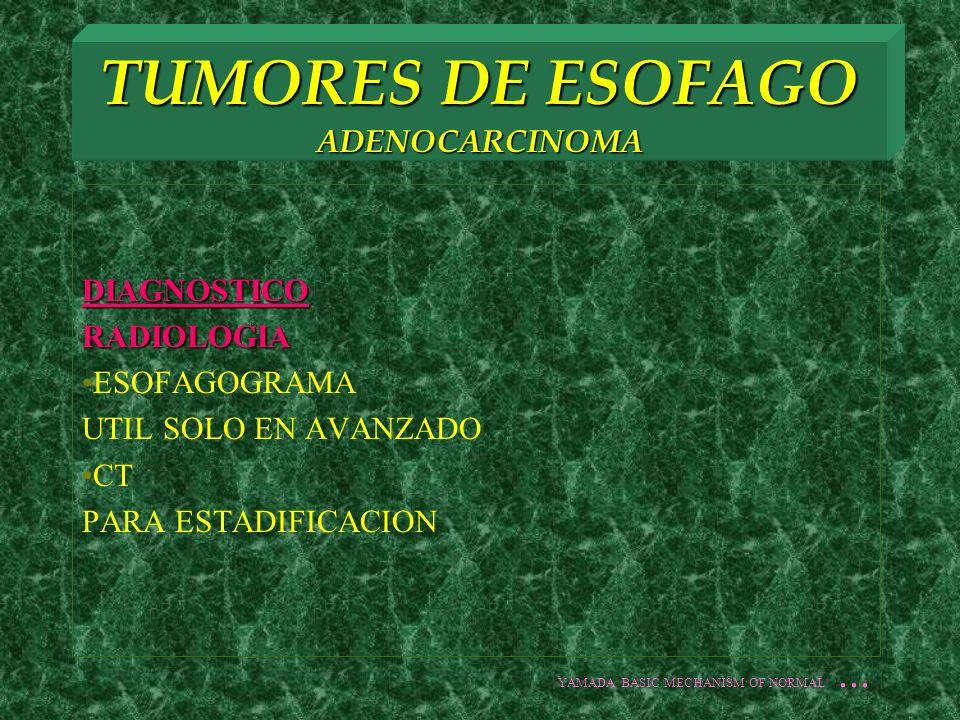 DIAGNOSTICORADIOLOGIA ESOFAGOGRAMA UTIL SOLO EN AVANZADO CT PARA ESTADIFICACION YAMADA BASIC MECHANISM OF NORMAL...