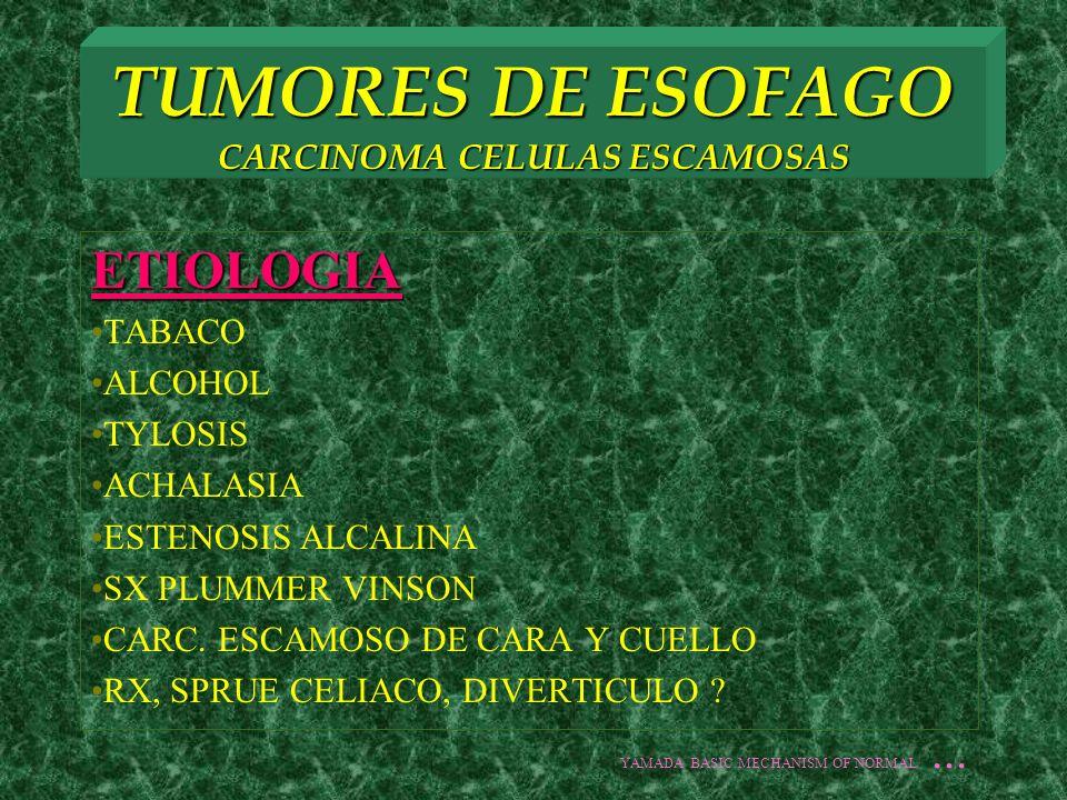 TUMORES DE ESOFAGO CARCINOMA CELULAS ESCAMOSAS HISTOPATOLOGIA DISPLASIA SEVERA POSIBILIDAD DE CANCER 26% DISPLASIA MODERADA 40% A 5 AÑOS CON TERAPIA : DISPLASIA SEVERA 15% CITOLOGIA NORMAL 40% YAMADA BASIC MECHANISM OF NORMAL...