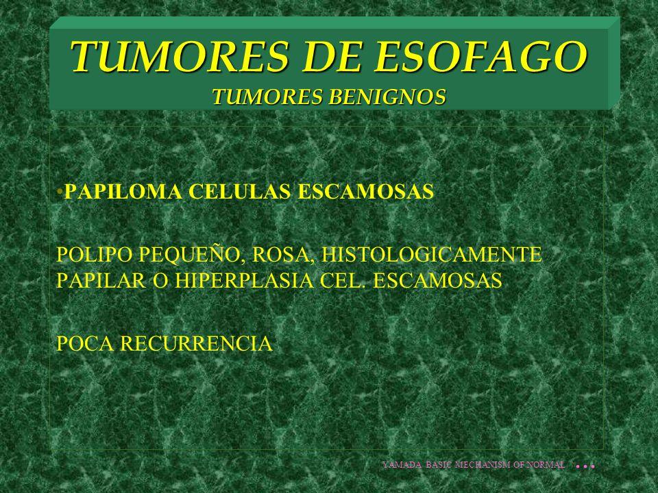 TUMORES DE ESOFAGO TUMORES BENIGNOS PAPILOMA CELULAS ESCAMOSAS POLIPO PEQUEÑO, ROSA, HISTOLOGICAMENTE PAPILAR O HIPERPLASIA CEL. ESCAMOSAS POCA RECURR