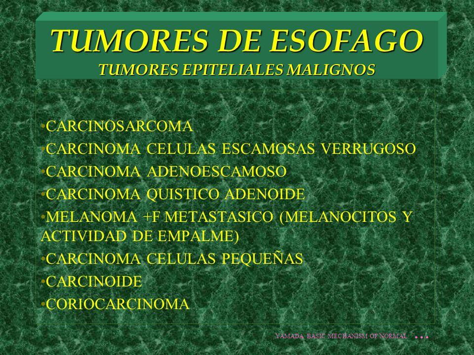 TUMORES DE ESOFAGO TUMORES EPITELIALES MALIGNOS CARCINOSARCOMA CARCINOMA CELULAS ESCAMOSAS VERRUGOSO CARCINOMA ADENOESCAMOSO CARCINOMA QUISTICO ADENOI