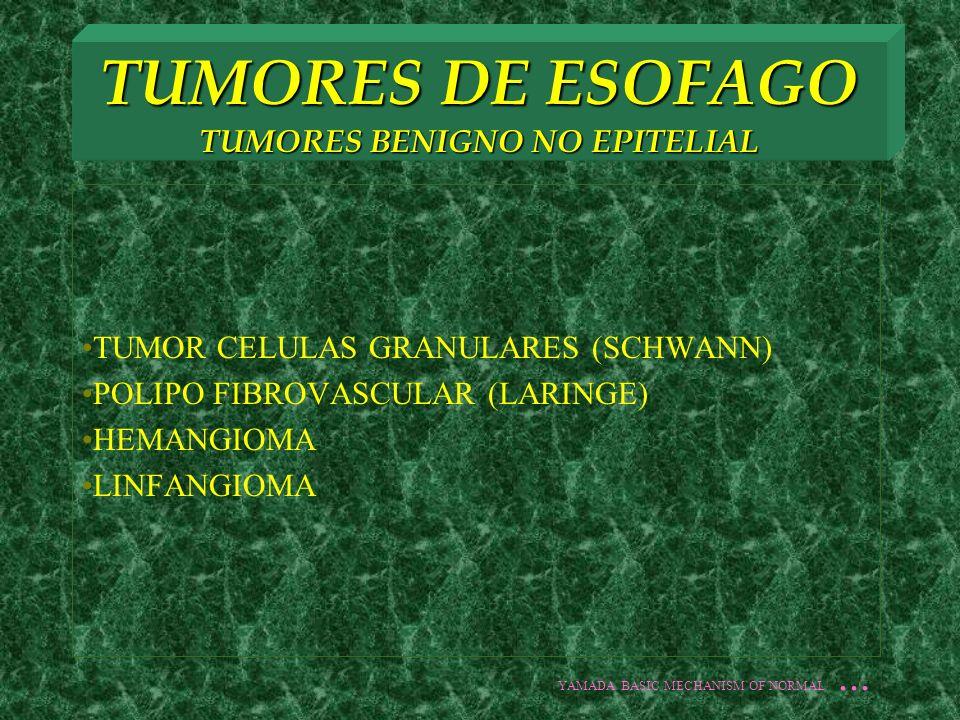 TUMORES DE ESOFAGO TUMORES BENIGNO NO EPITELIAL TUMOR CELULAS GRANULARES (SCHWANN) POLIPO FIBROVASCULAR (LARINGE) HEMANGIOMA LINFANGIOMA YAMADA BASIC