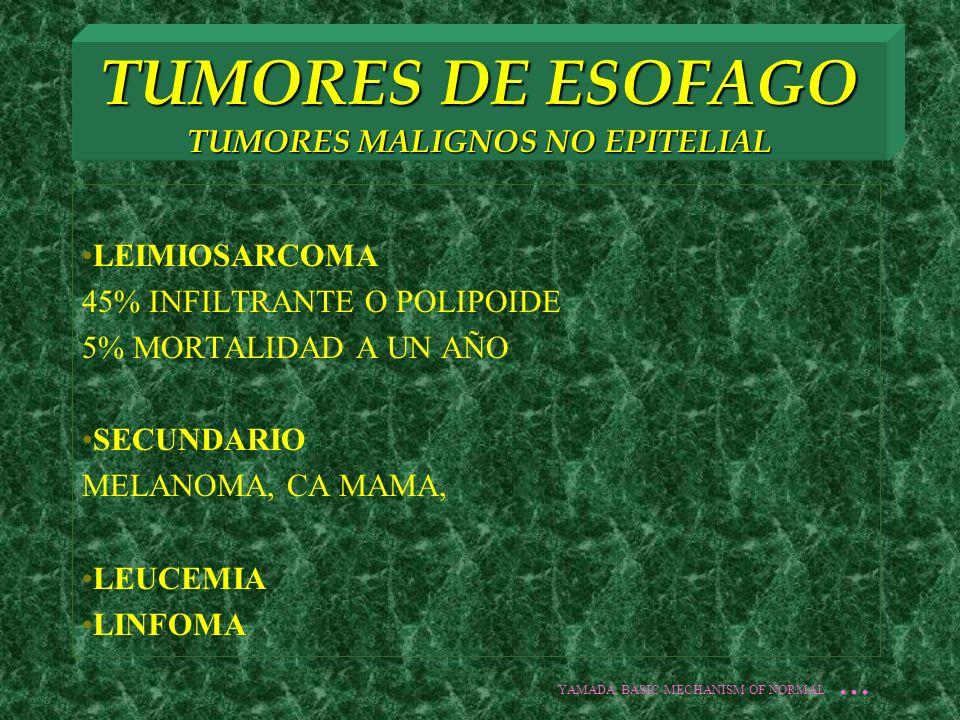 TUMORES DE ESOFAGO TUMORES MALIGNOS NO EPITELIAL LEIMIOSARCOMA 45% INFILTRANTE O POLIPOIDE 5% MORTALIDAD A UN AÑO SECUNDARIO MELANOMA, CA MAMA, LEUCEM