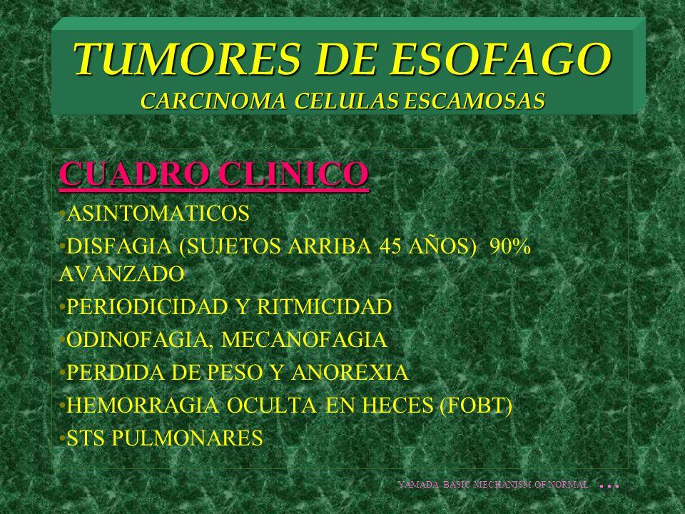 TUMORES DE ESOFAGO CARCINOMA CELULAS ESCAMOSAS CUADRO CLINICO ASINTOMATICOS DISFAGIA (SUJETOS ARRIBA 45 AÑOS) 90% AVANZADO PERIODICIDAD Y RITMICIDAD O