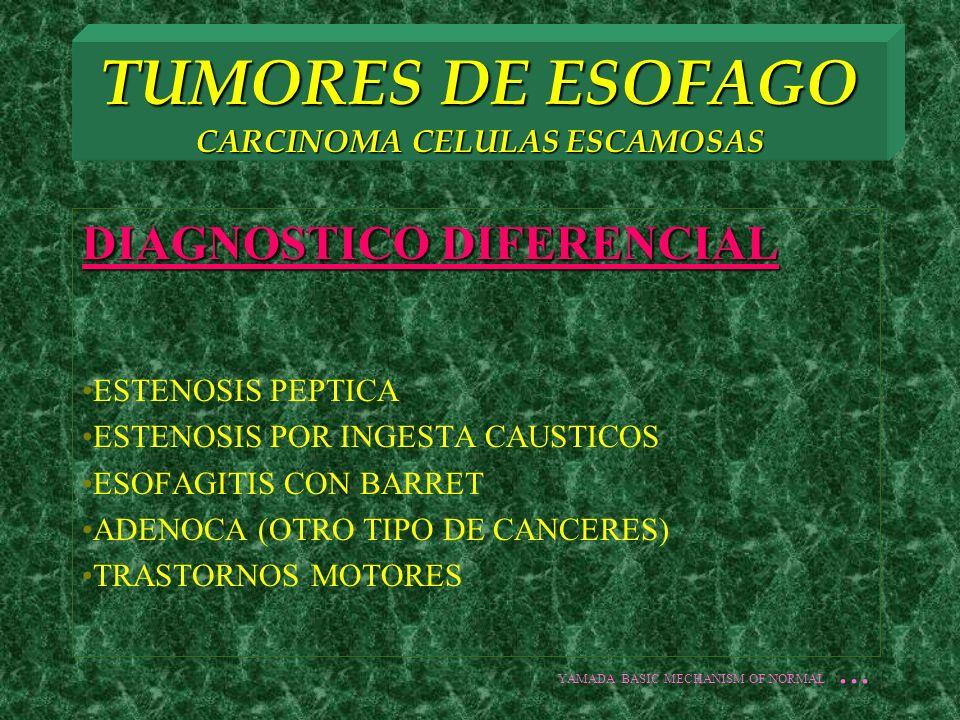 TUMORES DE ESOFAGO CARCINOMA CELULAS ESCAMOSAS DIAGNOSTICO HISTORIA CLINICA Y EXPLORACION FISICA BHC, QS, CT, USG, RX TX TRAGO DE BARIO O ESOFAGOGRAMMA ENDOSCOPIA CON TOMA BX Y CEPILLADO ESTADIFICAR YAMADA BASIC MECHANISM OF NORMAL...