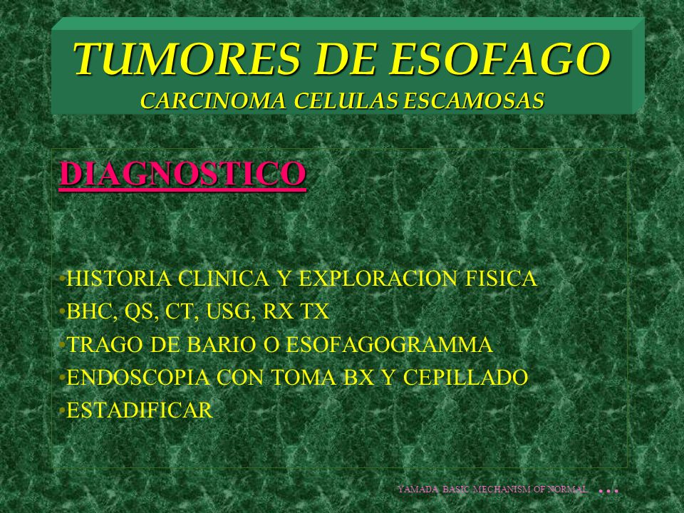 TUMORES DE ESOFAGO CARCINOMA CELULAS ESCAMOSAS ENDOSCOPIA JAPON 4 TIPOS: 1.EROSIVO SUPERFICIAL CON LEVE DEPRESION 2.PLACA LIGERAMENTE ELEVADA 3.CANCER CONGESTIVO CON AREAS HIPEREMCIAS 4.LESIONES POLIPOIDES PEQUEÑAS BX SENSIBILIDAD 95% AUNADA A CITOLOGIA POR CEPILLADO 100% YAMADA BASIC MECHANISM OF NORMAL...
