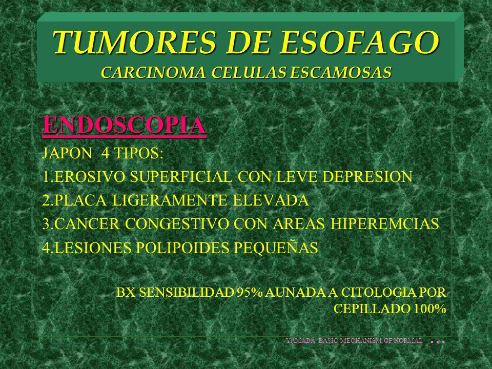 TUMORES DE ESOFAGO CARCINOMA CELULAS ESCAMOSAS ENDOSCOPIA JAPON 4 TIPOS: 1.EROSIVO SUPERFICIAL CON LEVE DEPRESION 2.PLACA LIGERAMENTE ELEVADA 3.CANCER