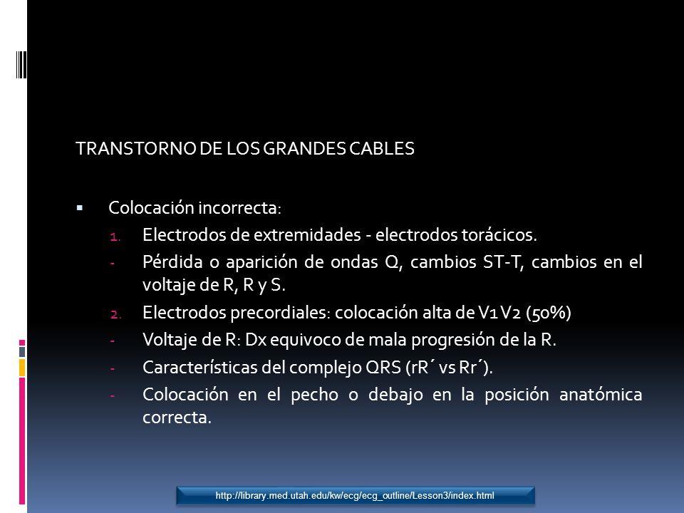 TRANSTORNO DE LOS GRANDES CABLES Colocación incorrecta: 1. Electrodos de extremidades - electrodos torácicos. - Pérdida o aparición de ondas Q, cambio