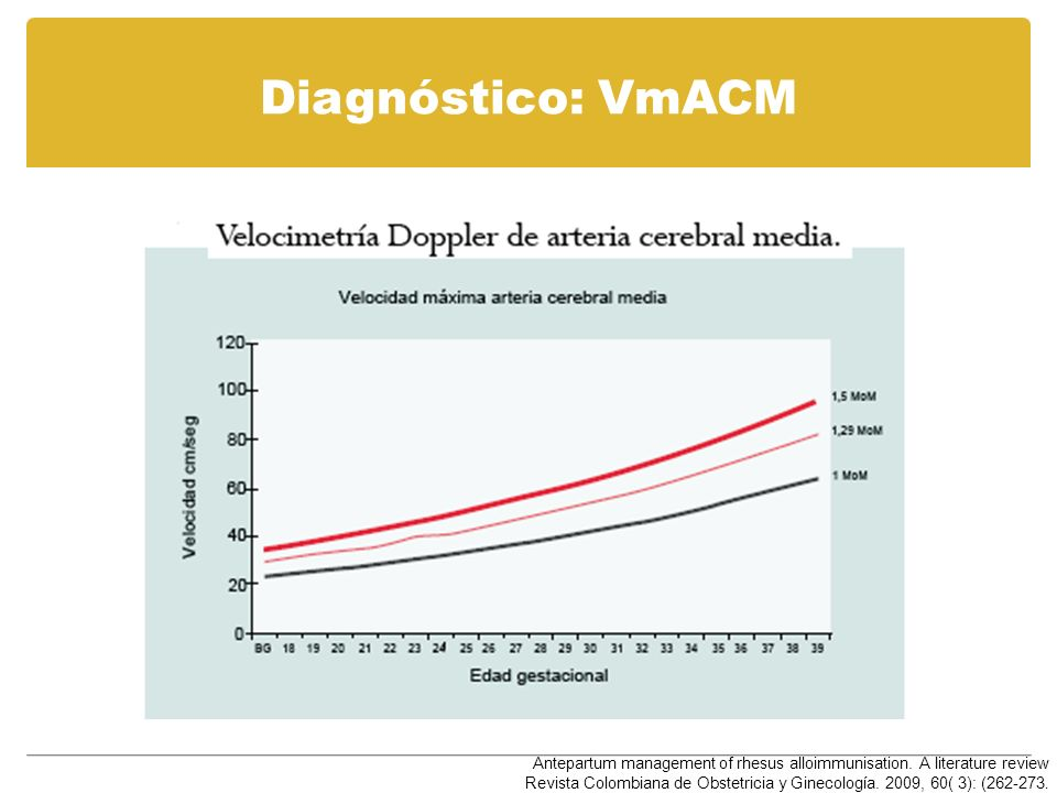 Diagnóstico: VmACM Antepartum management of rhesus alloimmunisation. A literature review Revista Colombiana de Obstetricia y Ginecología. 2009, 60( 3)