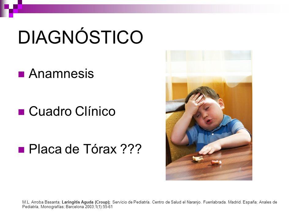DIAGNÓSTICO Anamnesis Cuadro Clínico Placa de Tórax ??? M.L. Arroba Basanta; Laringitis Aguda (Croup); Servicio de Pediatría. Centro de Salud el Naran