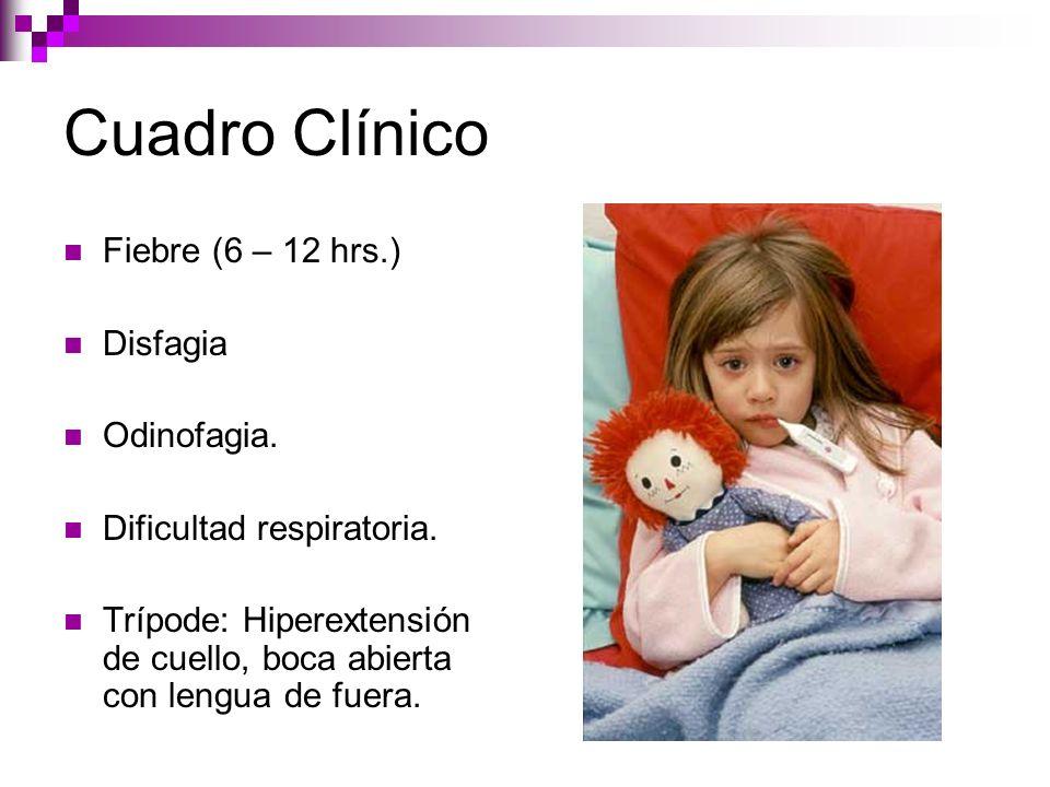 Cuadro Clínico Fiebre (6 – 12 hrs.) Disfagia Odinofagia. Dificultad respiratoria. Trípode: Hiperextensión de cuello, boca abierta con lengua de fuera.
