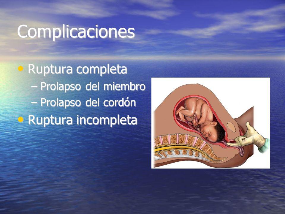 Complicaciones Ruptura completa Ruptura completa –Prolapso del miembro –Prolapso del cordón Ruptura incompleta Ruptura incompleta