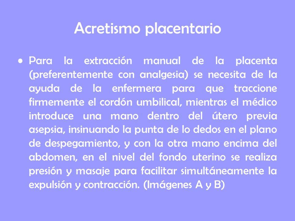 Acretismo placentario Para la extracción manual de la placenta (preferentemente con analgesia) se necesita de la ayuda de la enfermera para que tracci