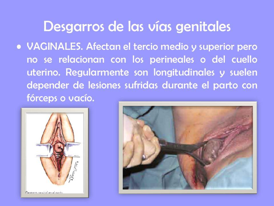 Desgarros de las vías genitales VAGINALES. Afectan el tercio medio y superior pero no se relacionan con los perineales o del cuello uterino. Regularme