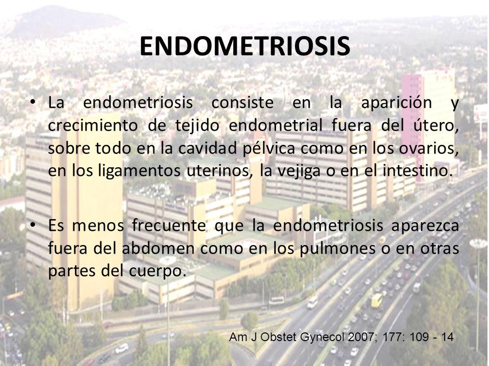 La endometriosis consiste en la aparición y crecimiento de tejido endometrial fuera del útero, sobre todo en la cavidad pélvica como en los ovarios, e
