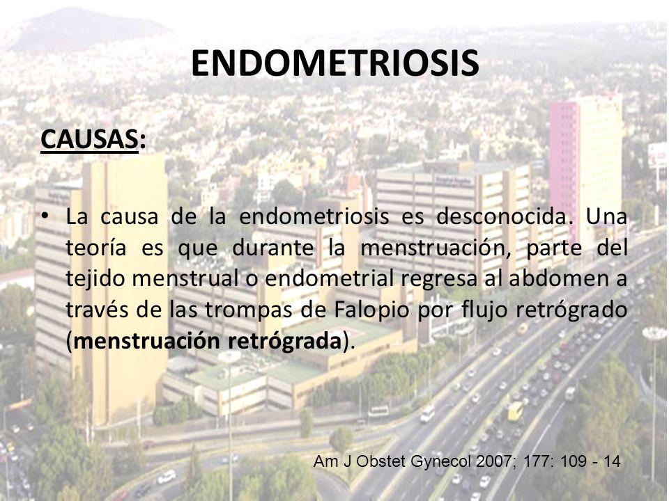 CAUSAS: La causa de la endometriosis es desconocida. Una teoría es que durante la menstruación, parte del tejido menstrual o endometrial regresa al ab