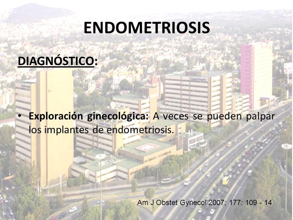 DIAGNÓSTICO: Exploración ginecológica: A veces se pueden palpar los implantes de endometriosis. Am J Obstet Gynecol 2007; 177: 109 - 14 ENDOMETRIOSIS