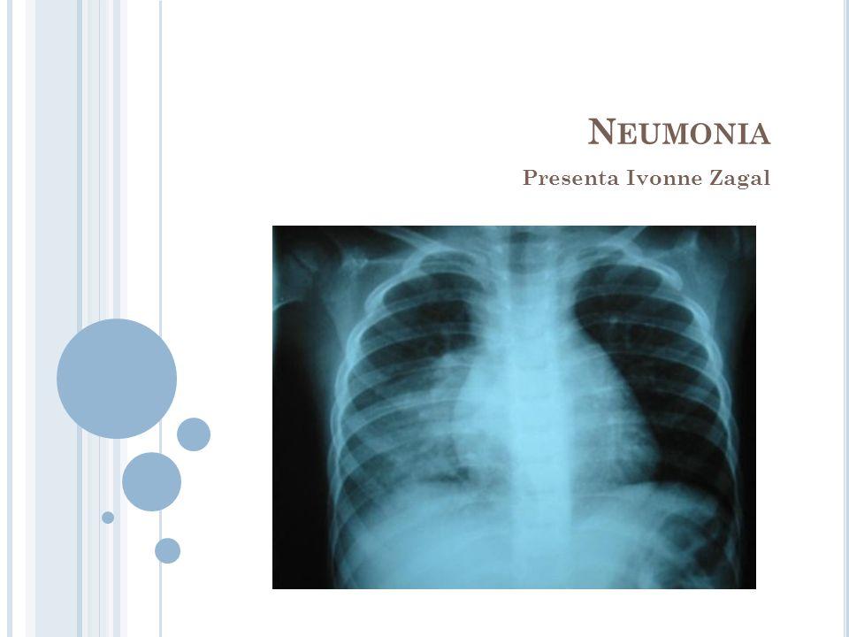 M ANIFESTACIONES CLÍNICAS VIRALES Fiebre Taquipnea Aumento del trabajo respiratorio Cianosis Fatiga respiratoria Sibilancias crepitantes