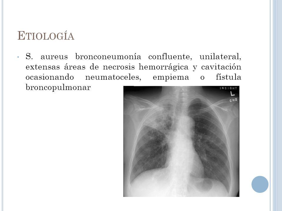 E TIOLOGÍA S. aureus bronconeumonía confluente, unilateral, extensas áreas de necrosis hemorrágica y cavitación ocasionando neumatoceles, empiema o fí