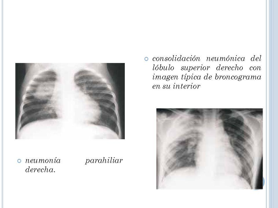 neumonía parahiliar derecha. consolidación neumónica del lóbulo superior derecho con imagen típica de broncograma en su interior