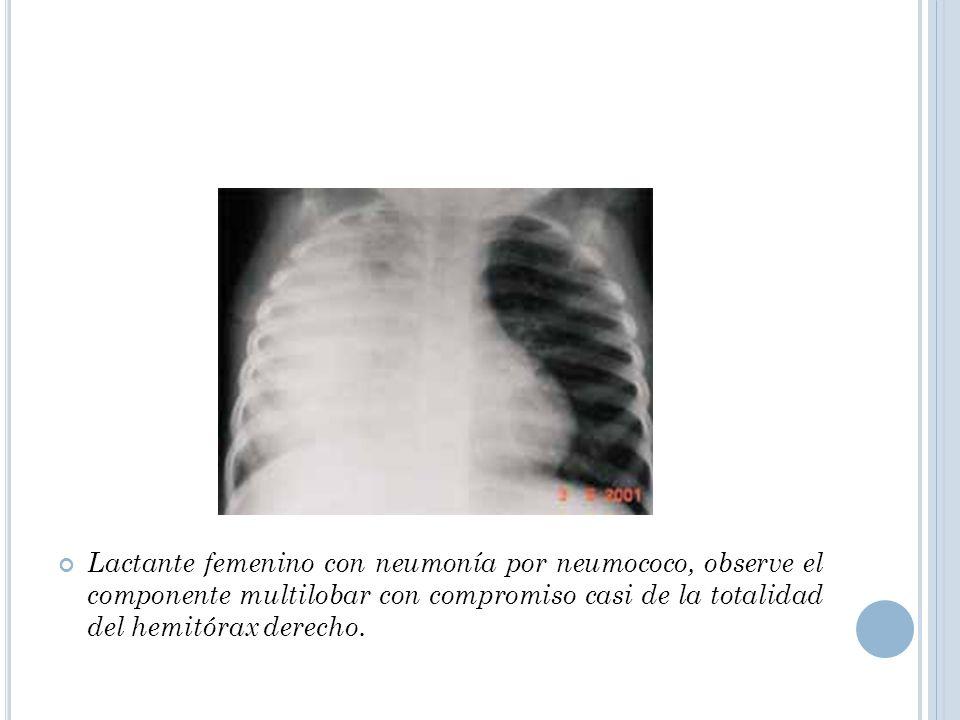 Lactante femenino con neumonía por neumococo, observe el componente multilobar con compromiso casi de la totalidad del hemitórax derecho.